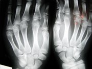 decouverte-du-rayon-x/hands-x-ray14-jpg.jpeg