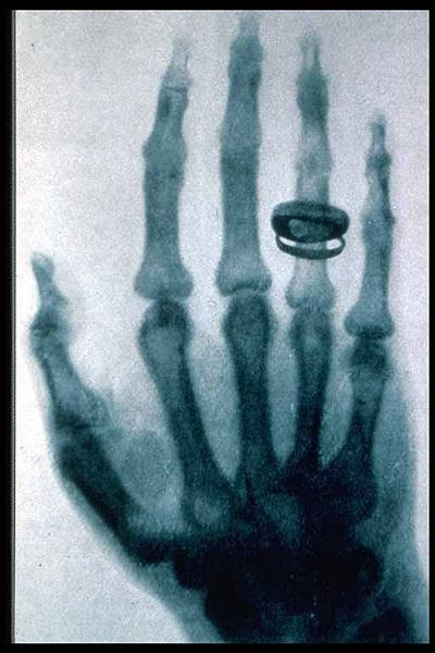 demonstration-publique-du-rayon-x/roentgen-x-ray-von-kollikers-hand1.jpg